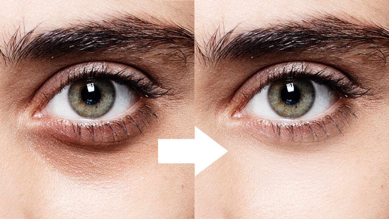 Natural Remedies to Get Rid of Dark Eye Circle